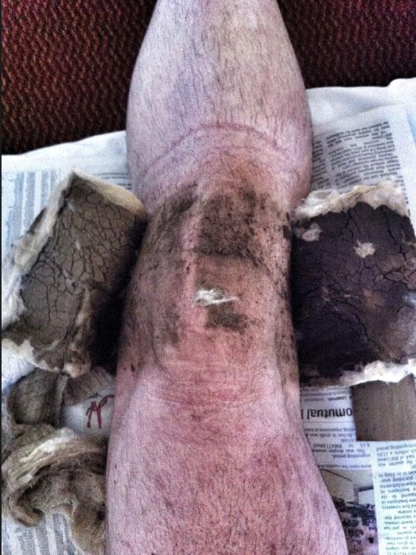 Carnet de stage Silat Fatani 2013 - Cataplasame du vieux masseur chinois en Malasie